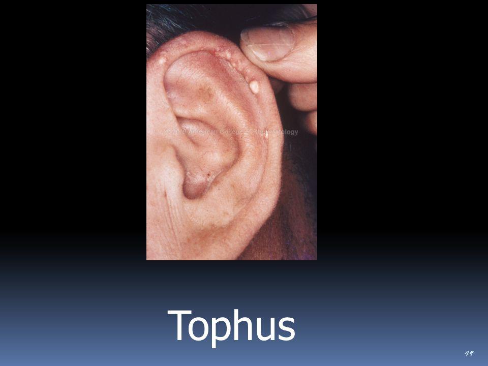 49 Tophus