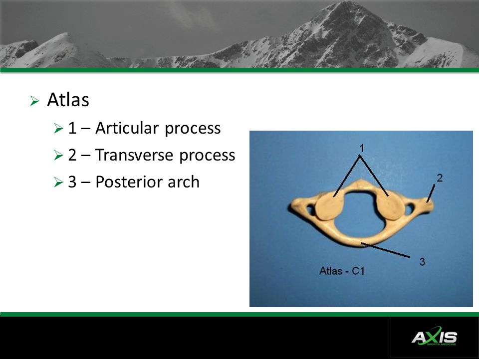  Atlas  1 – Articular process  2 – Transverse process  3 – Posterior arch