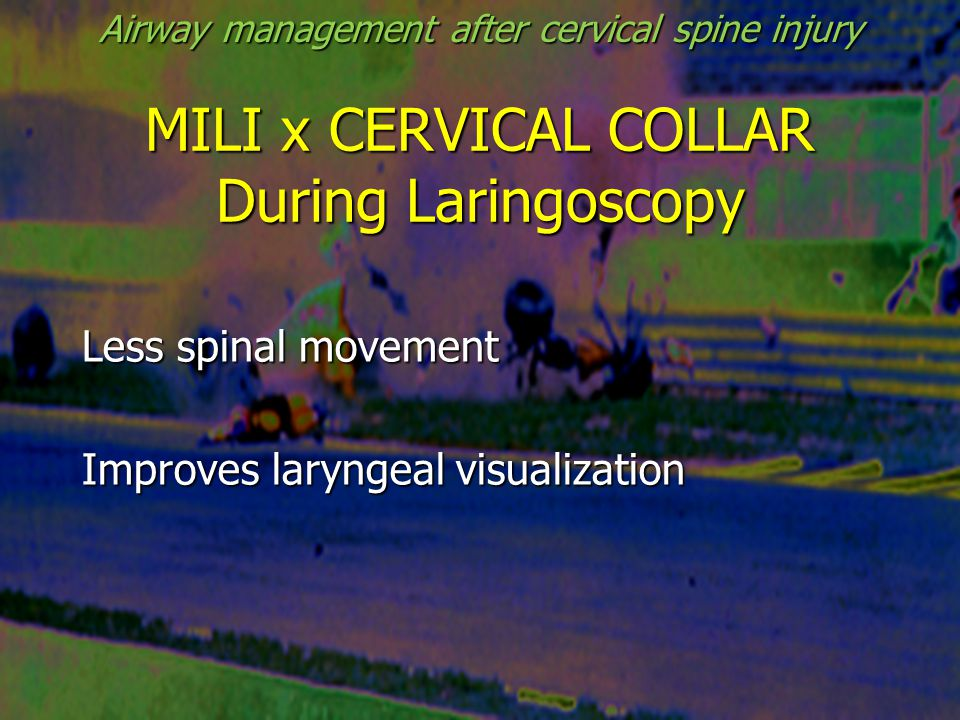 MILI x CERVICAL COLLAR During Laringoscopy Less spinal movement Improves laryngeal visualization Airway management after cervical spine injury