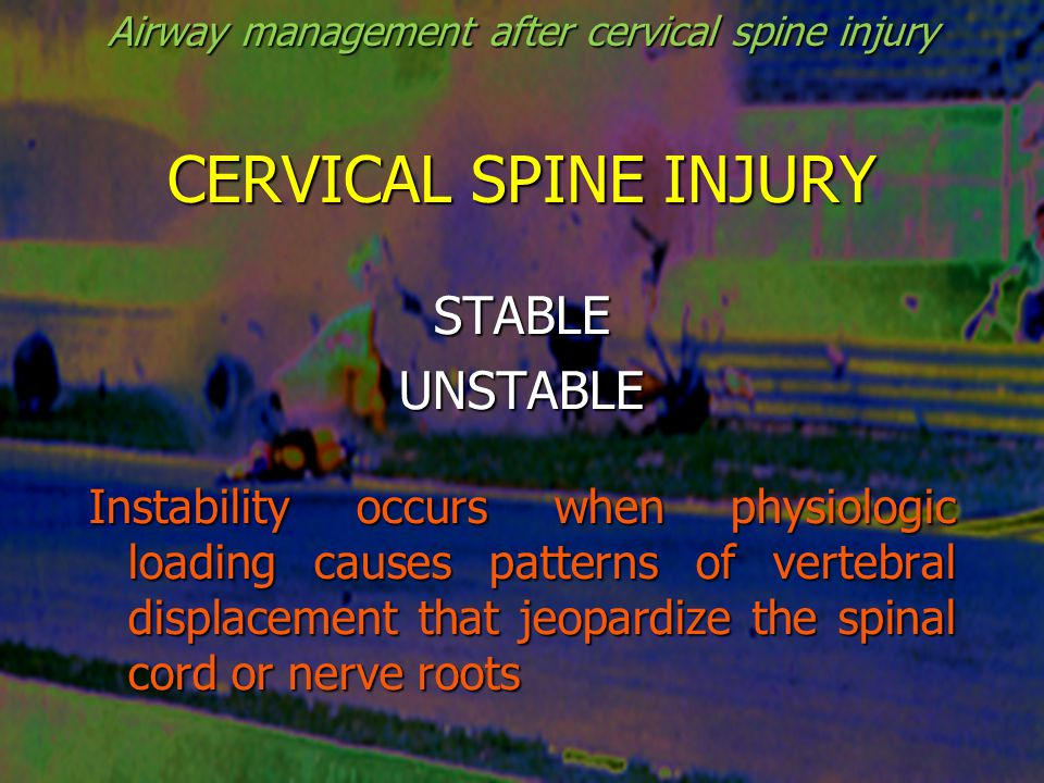 CERVICAL SPINE INJURIES Not clinically significant (NEXUS) -Spinous process fractures -Wedge compression fractures ≤ 25% body -Isolated avulsion without ligament injury -Type I odontoid fracture -End-plate fractures -Isolated osteophyte fractures -Trabecular fractures -Isolated transverse process fractures Goldberg W et al Ann Emerg Med, 2001 Airway management after cervical spine injury