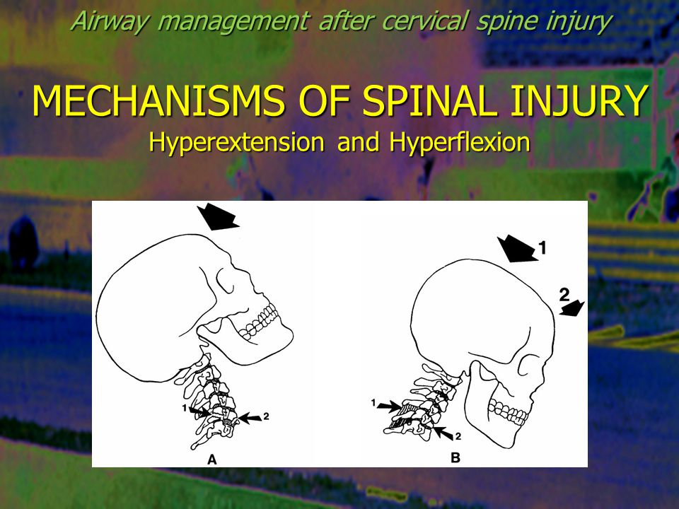 COMPARABLE SPINAL MOVEMENT Direct laringoscopy Video-laryngoscopy (Glidescope) Nasotracheal intubation Laryngeal mask insertion Combitube and PTL Cricothyrotomy Flexible bronchoscope intubation Airway management after cervical spine injury