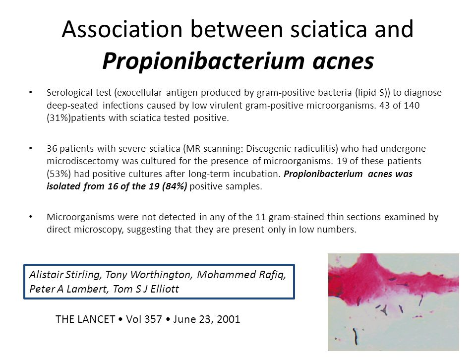 Association between sciatica and Propionibacterium acnes Serological test (exocellular antigen produced by gram-positive bacteria (lipid S)) to diagno