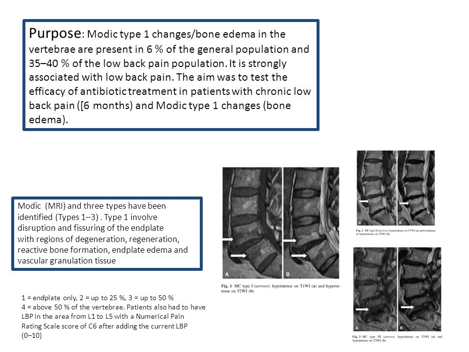 Purpose : Modic type 1 changes/bone edema in the vertebrae are present in 6 % of the general population and 35–40 % of the low back pain population. I