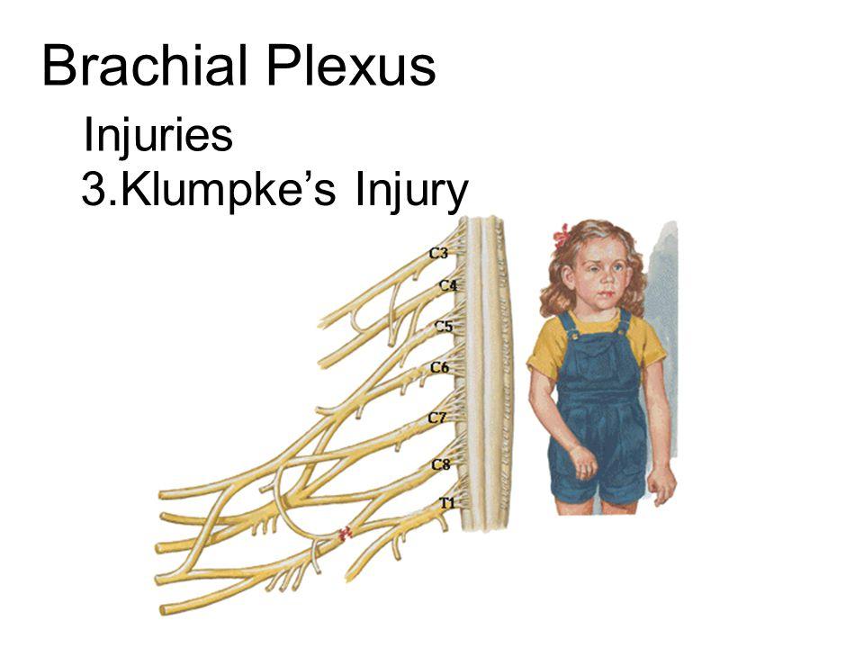 Brachial Plexus Injuries 3.Klumpke's Injury