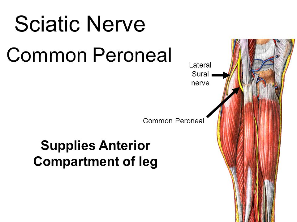 Sciatic Nerve Common Peroneal Supplies Anterior Compartment of leg Lateral Sural nerve Common Peroneal
