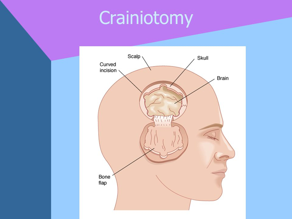 Crainiotomy