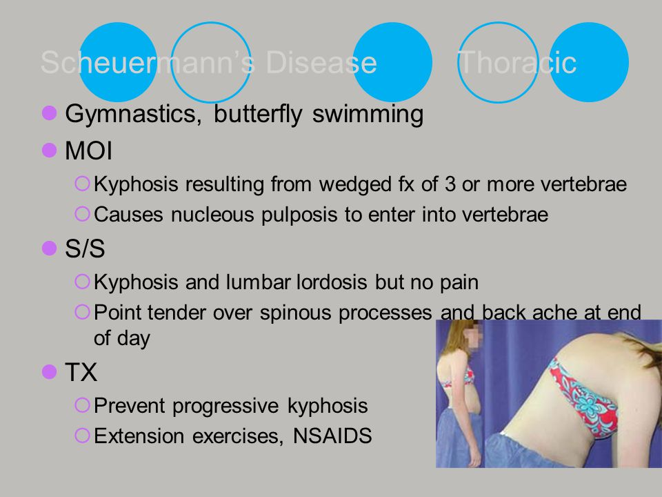 Scheuermann's Disease Thoracic Gymnastics, butterfly swimming MOI  Kyphosis resulting from wedged fx of 3 or more vertebrae  Causes nucleous pulposi