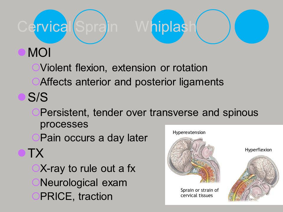 Cervical Sprain Whiplash MOI  Violent flexion, extension or rotation  Affects anterior and posterior ligaments S/S  Persistent, tender over transve