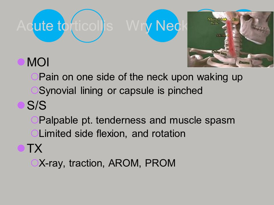 Acute torticollis Wry Neck MOI  Pain on one side of the neck upon waking up  Synovial lining or capsule is pinched S/S  Palpable pt. tenderness and