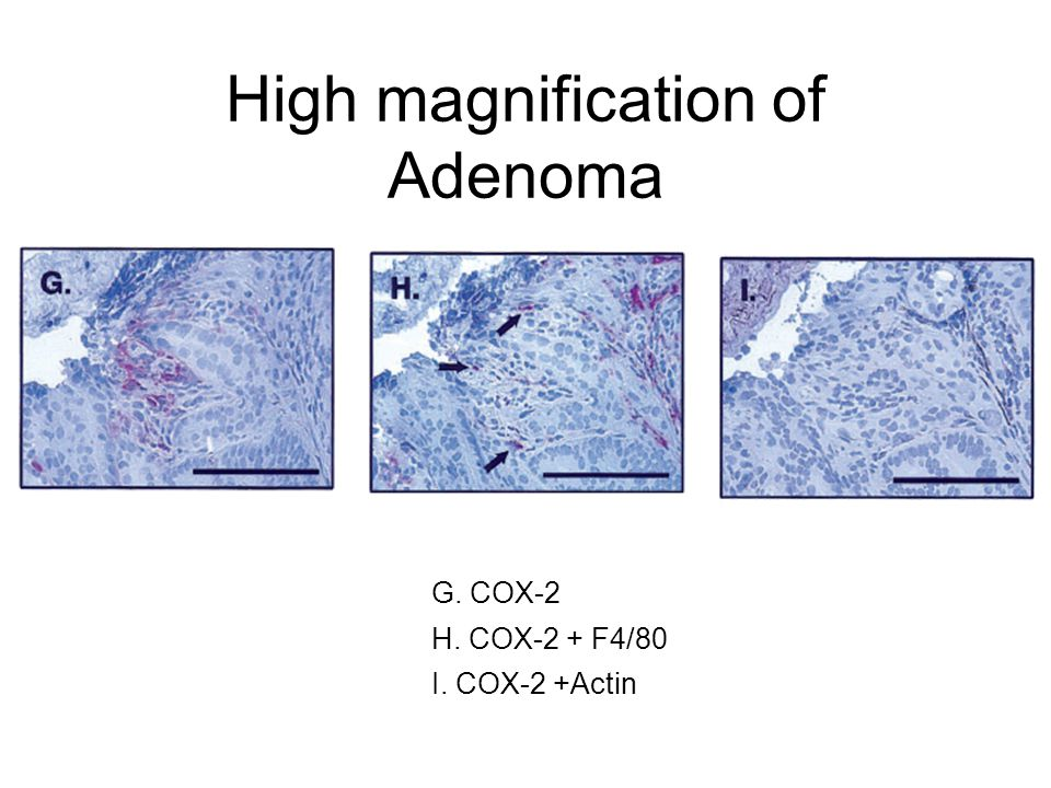 High magnification of Adenoma G. COX-2 H. COX-2 + F4/80 I. COX-2 +Actin