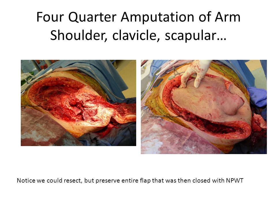 Four Quarter Amputation of Arm Shoulder, clavicle, scapular… Notice we could resect, but preserve entire flap that was then closed with NPWT