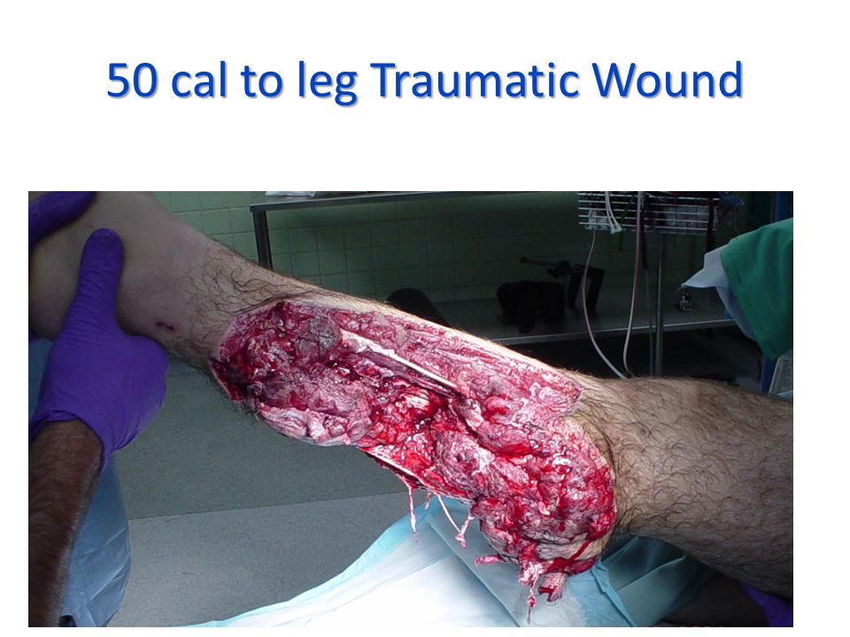 50 cal to leg Traumatic Wound