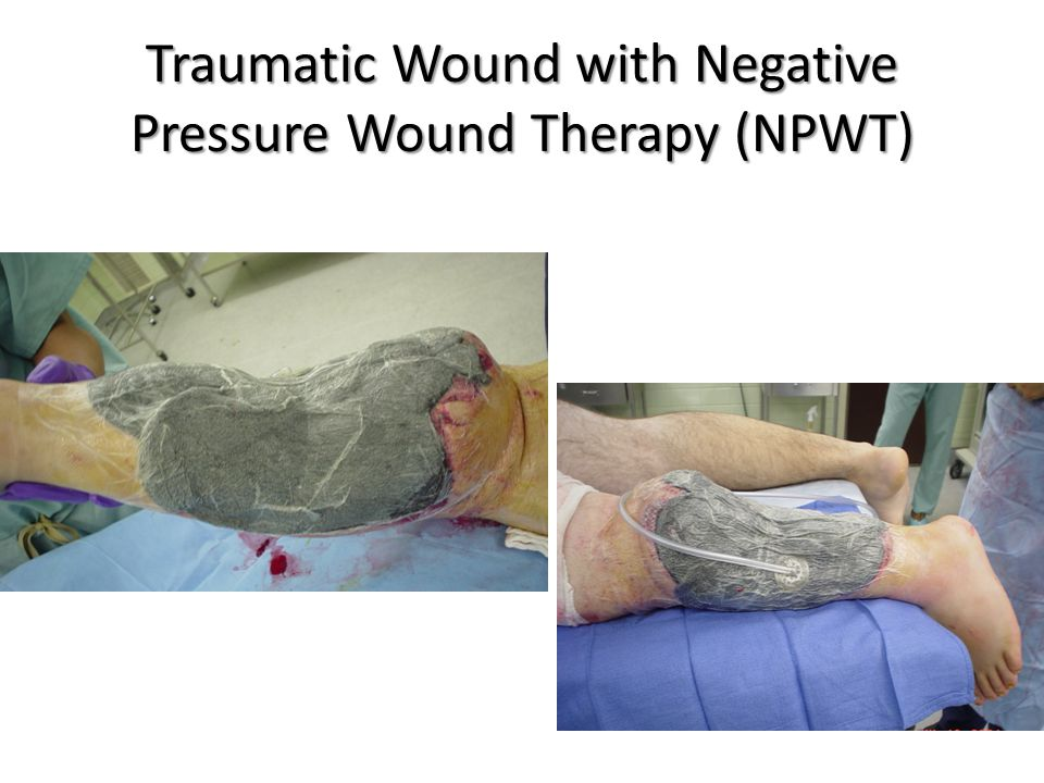 Traumatic Wound with Negative Pressure Wound Therapy (NPWT)