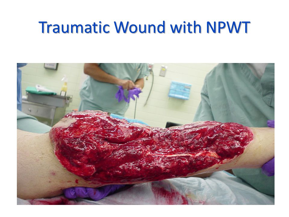 Traumatic Wound with NPWT