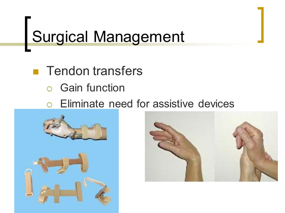 Surgical Management Tendon transfers  Gain function  Eliminate need for assistive devices