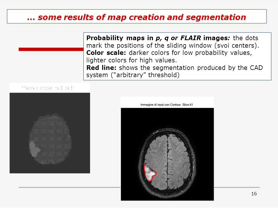 16 … some results of map creation and segmentation Probability maps in p, q or FLAIR images: the dots mark the positions of the sliding window (svoi c