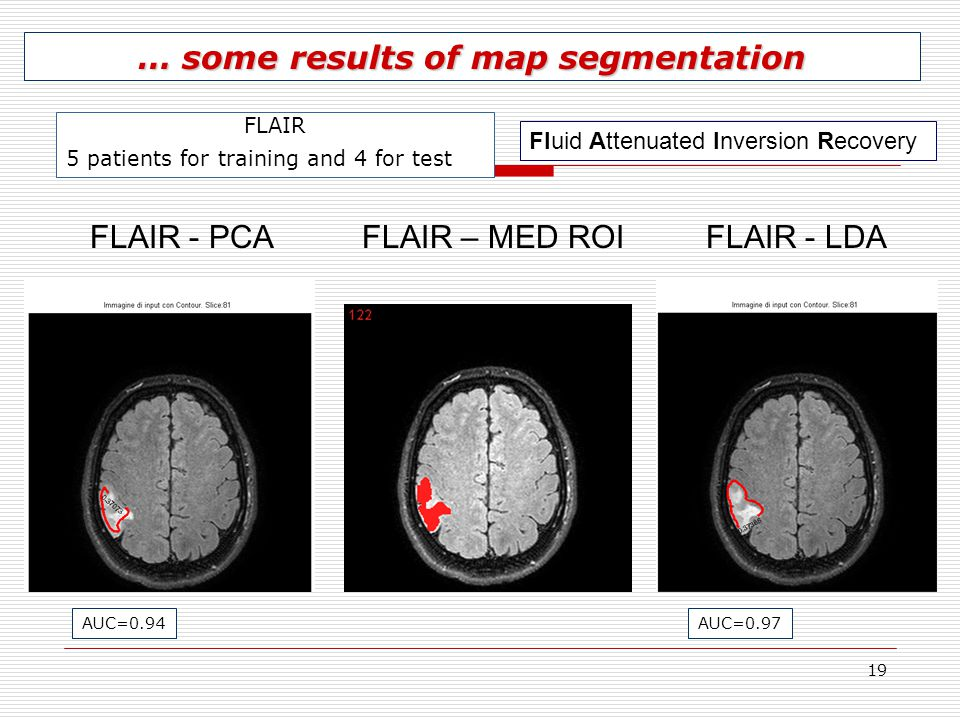 19 FLAIR - PCAFLAIR - LDAFLAIR – MED ROI … some results of map segmentation FLAIR 5 patients for training and 4 for test AUC=0.94AUC=0.97 Fluid Attenu