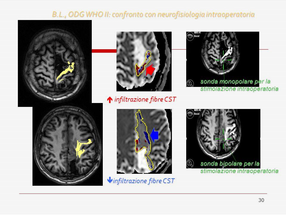 30 sonda monopolare per la stimolazione intraoperatoria  infiltrazione fibre CST B.L., ODG WHO II: confronto con neurofisiologia intraoperatoria  in