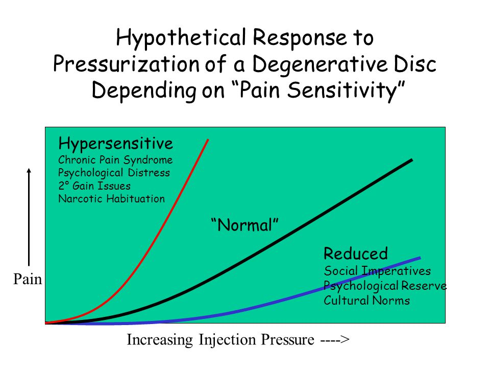 Hypothetical Response to Pressurization of a Degenerative Disc Depending on Pain Sensitivity Normal Increasing Injection Pressure ----> Pain Hypersensitive Chronic Pain Syndrome Psychological Distress 2° Gain Issues Narcotic Habituation Reduced Social Imperatives Psychological Reserve Cultural Norms