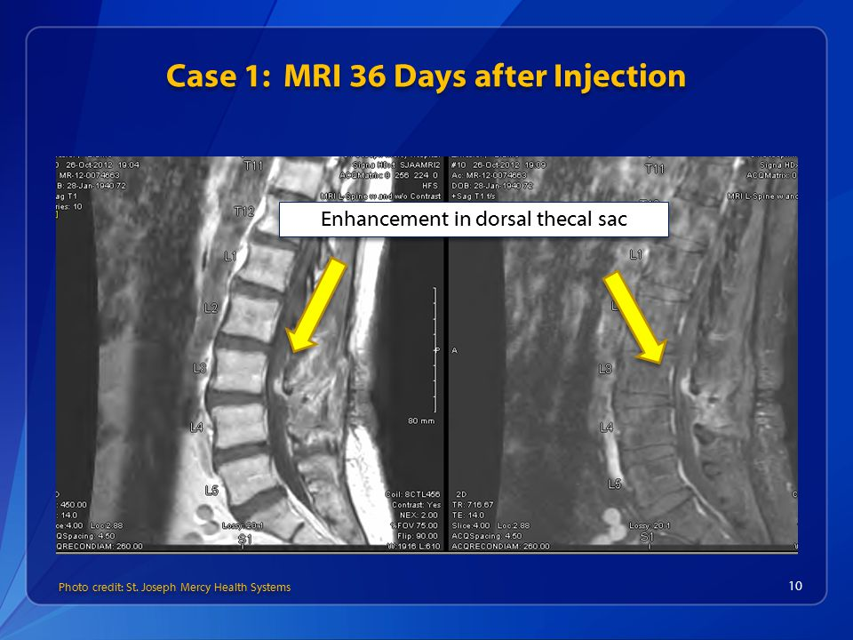 Case 1: MRI 36 Days after Injection 10 Enhancement in dorsal thecal sac Photo credit: St.