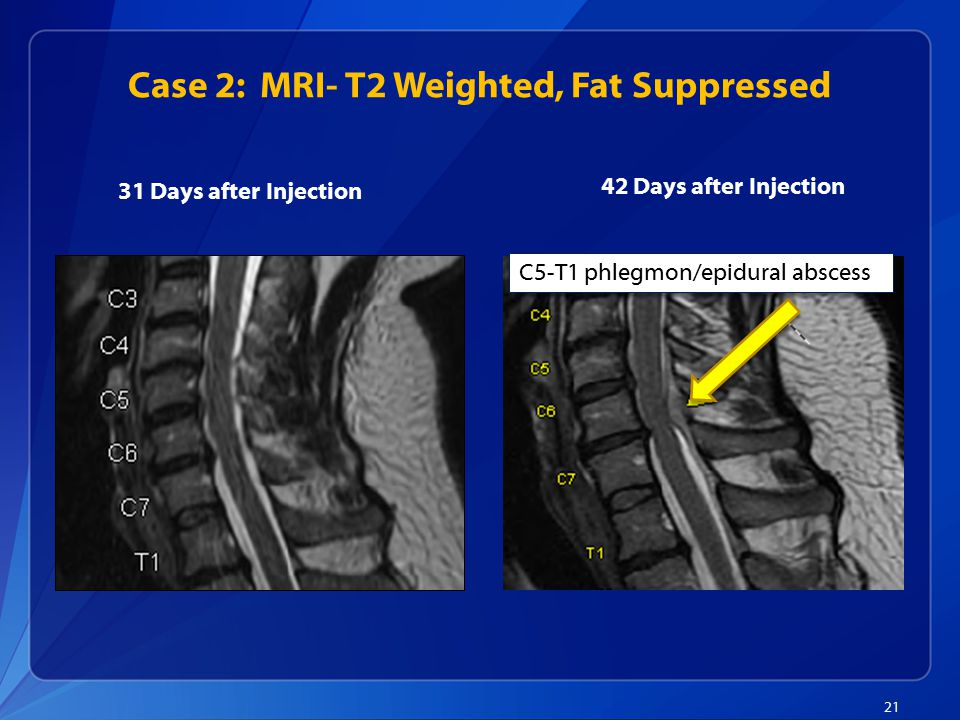 Case 2: MRI- T2 Weighted, Fat Suppressed 21 31 Days after Injection 42 Days after Injection C5-T1 phlegmon/epidural abscess