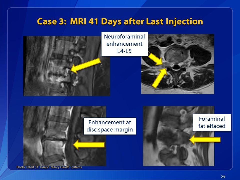 Case 3: MRI 41 Days after Last Injection 29 Neuroforaminal enhancement L4-L5 Foraminal fat effaced Enhancement at disc space margin Photo credit: St.