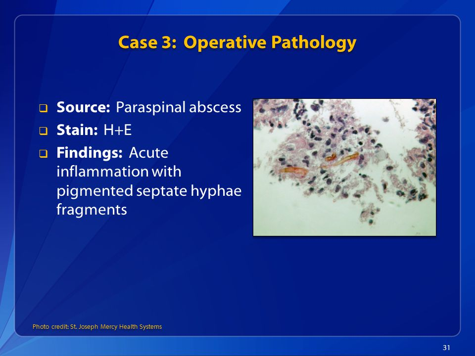 Case 3: Operative Pathology 31  Source: Paraspinal abscess  Stain: H+E  Findings: Acute inflammation with pigmented septate hyphae fragments Photo credit: St.