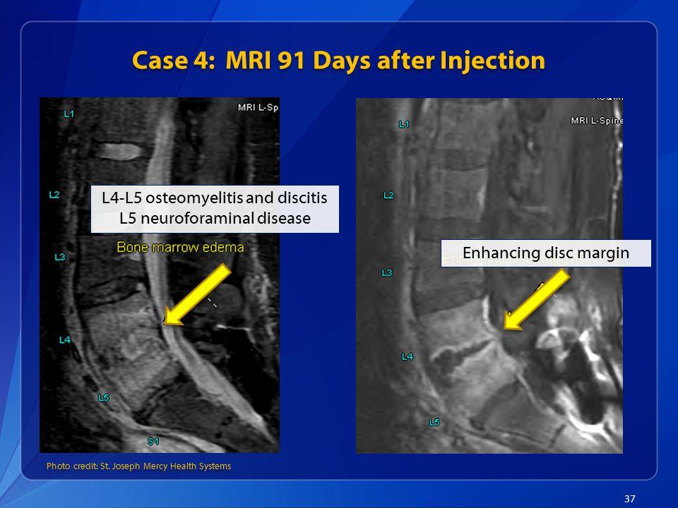 Case 4: MRI 91 Days after Injection 37 L4-L5 osteomyelitis and discitis L5 neuroforaminal disease Photo credit: St.