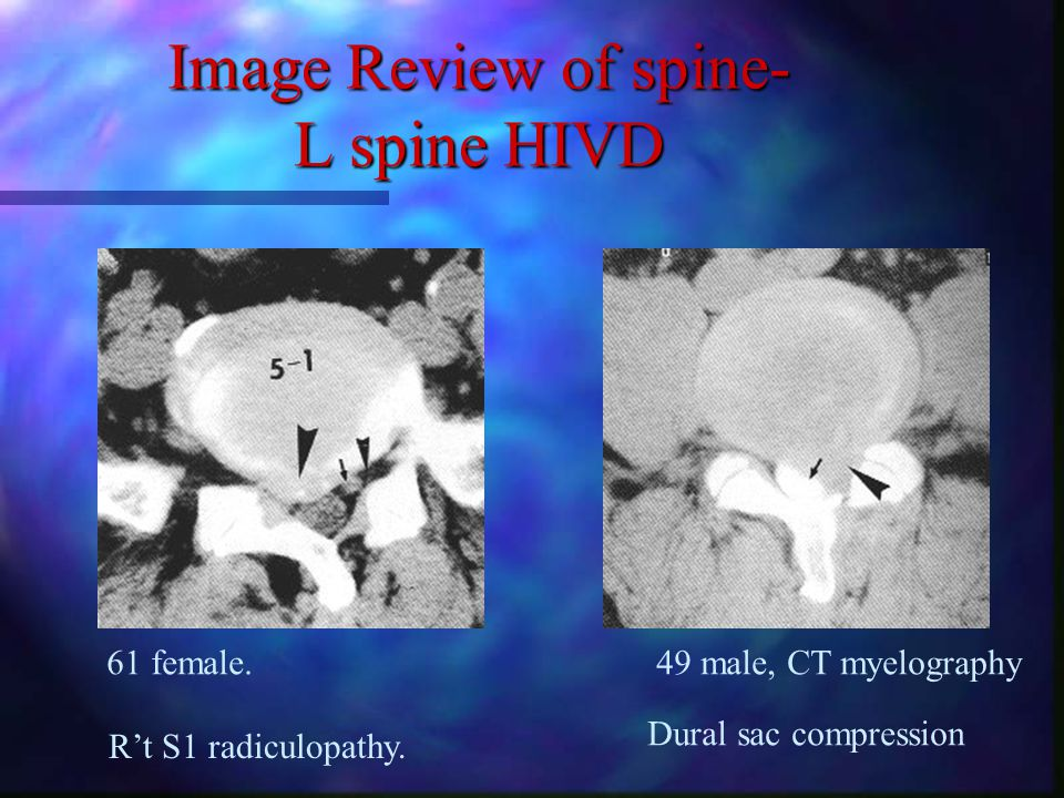 Image Review of spine- L spine CT L3 body, L3 root, fat.