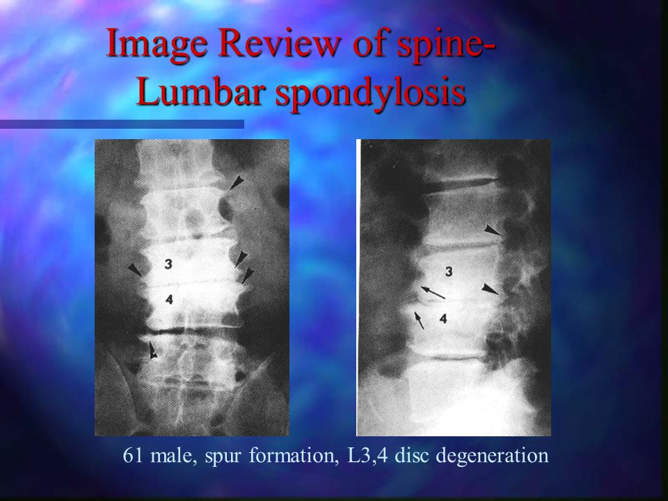 Image Review of spine - L spine HIVD 36 male 56 female. 34 male L5 root