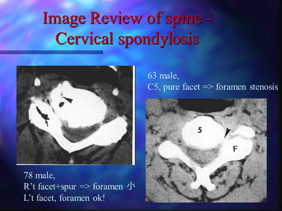 Image Review of spine- Cervical spondylosis 68 male, spur, C5-6-7 foramenal stenosis