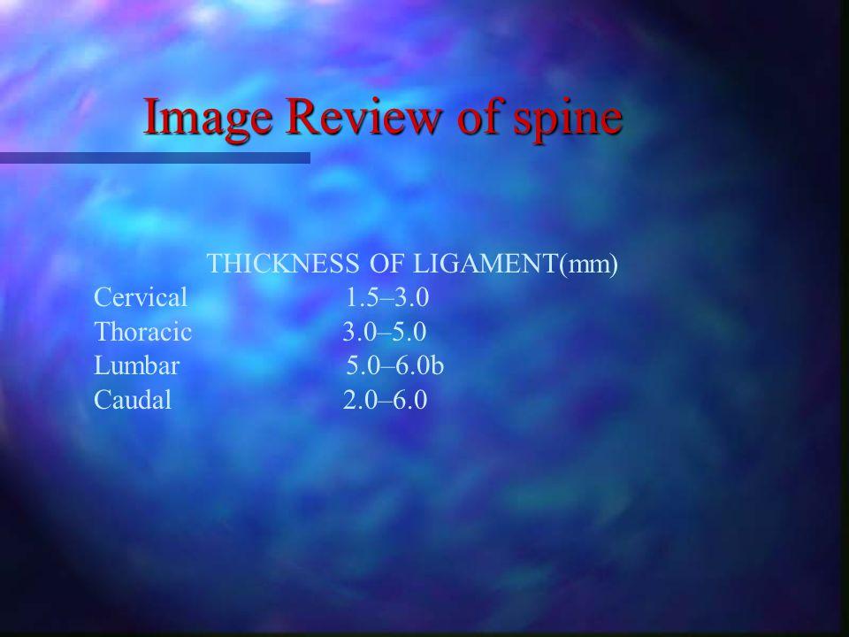 Image Review of spine- Lumbar spondylosis Disc vacuum+ facet Facet subluxation