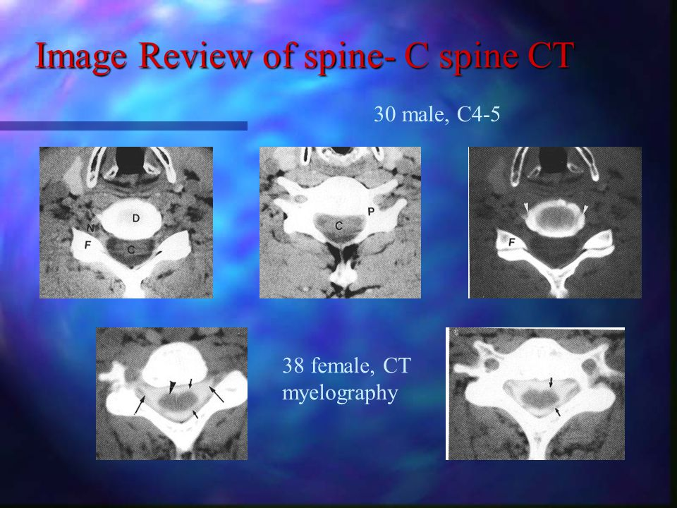Image Review of spine- C spine CT 30 male, C4-5 38 female, CT myelography