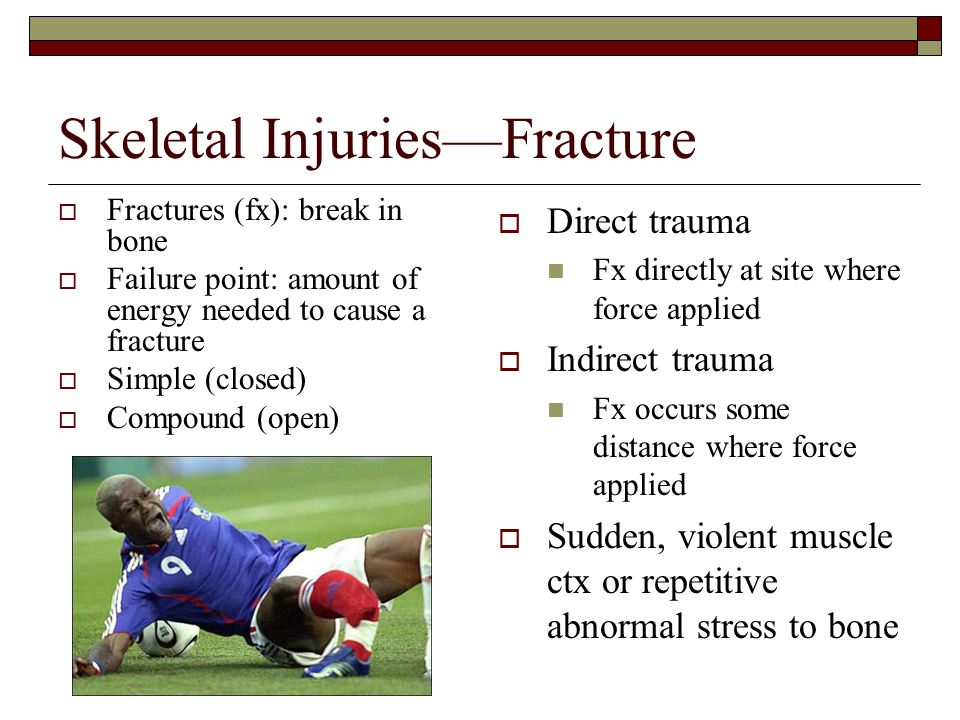 Skeletal Injuries—Fracture  Fractures (fx): break in bone  Failure point: amount of energy needed to cause a fracture  Simple (closed)  Compound (open)  Direct trauma Fx directly at site where force applied  Indirect trauma Fx occurs some distance where force applied  Sudden, violent muscle ctx or repetitive abnormal stress to bone