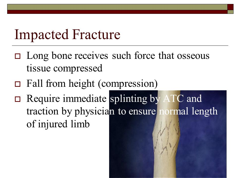 Impacted Fracture  Long bone receives such force that osseous tissue compressed  Fall from height (compression)  Require immediate splinting by ATC and traction by physician to ensure normal length of injured limb