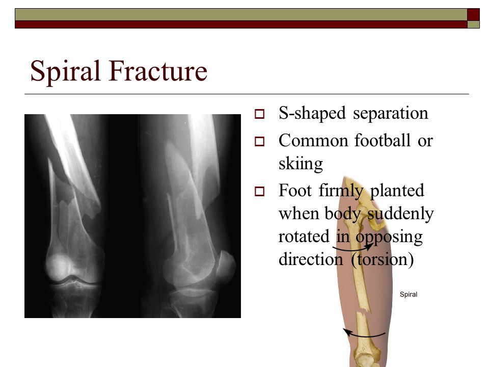 Spiral Fracture  S-shaped separation  Common football or skiing  Foot firmly planted when body suddenly rotated in opposing direction (torsion)