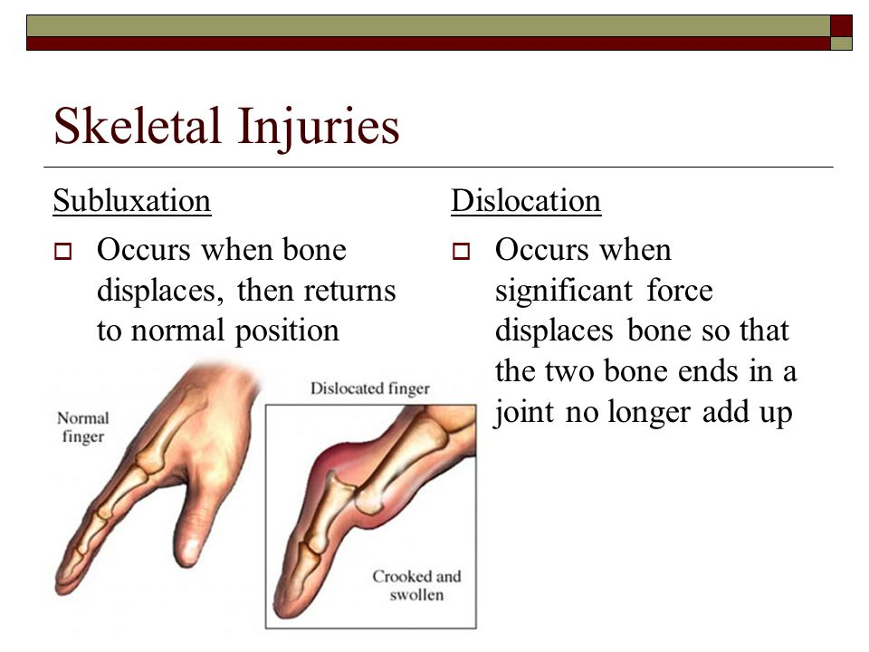 Skeletal Injuries Subluxation  Occurs when bone displaces, then returns to normal position Dislocation  Occurs when significant force displaces bone so that the two bone ends in a joint no longer add up