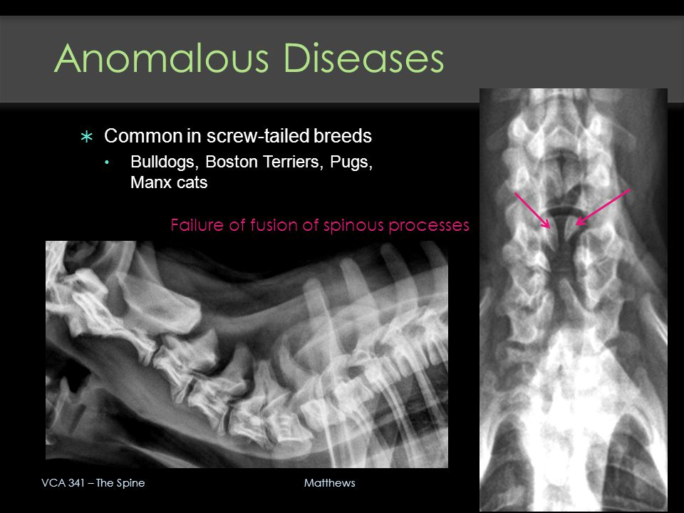 Anomalous Diseases VCA 341 – The Spine 39 Matthews  Common in screw-tailed breeds Bulldogs, Boston Terriers, Pugs, Manx cats Failure of fusion of spi