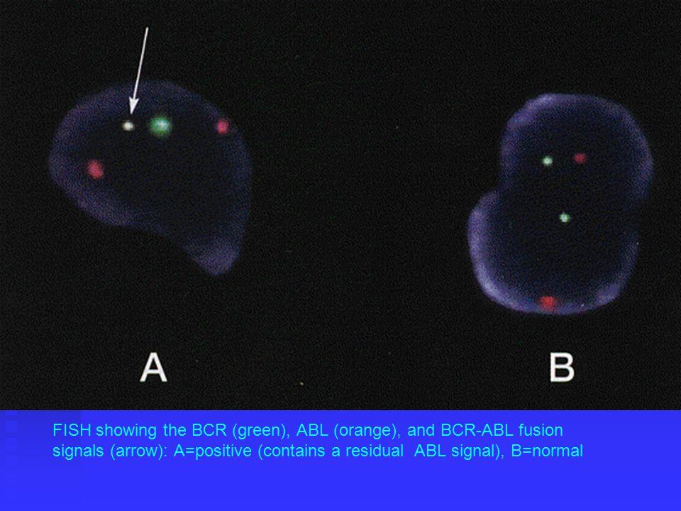 FAB (1982) Classification of Myeloproliferative Disease (MPD) Chronic Myelocytic Leukemia (CML) Chronic Myelocytic Leukemia (CML) Polycythemia Vera (PV) Polycythemia Vera (PV) Essential Thrombocythemia (ET) Essential Thrombocythemia (ET) Agnogenic Myeloid Metaplasia with or without Myelofibrosis (AMM) Agnogenic Myeloid Metaplasia with or without Myelofibrosis (AMM) Benign Leukemoid Reaction Benign Leukemoid Reaction