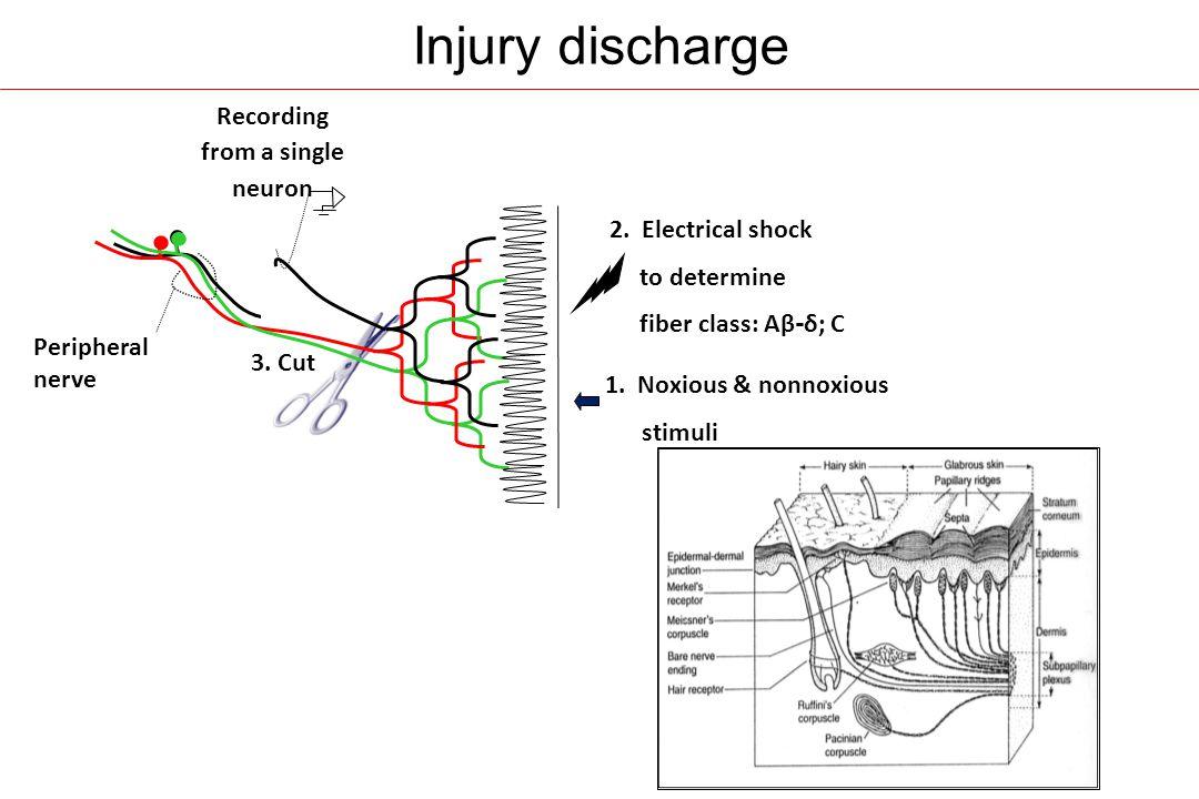 Injury discharge triggers neuropathic pain - II Electrical tetanization Postoperative time (days) C-fibers Wind-up (0.5Hz) C-fibers (0.1Hz) A-fibers CON Neuropathic pain score Local anesthetic Seltzer et al (1990b)