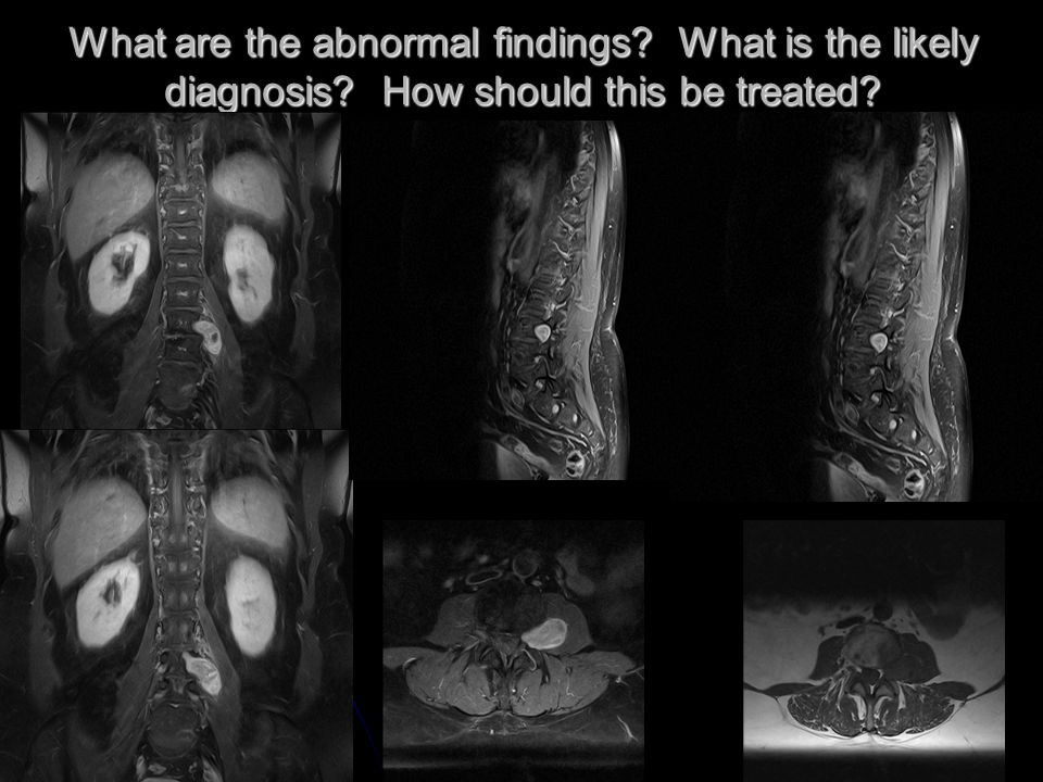 What are the abnormal findings What is the likely diagnosis How should this be treated