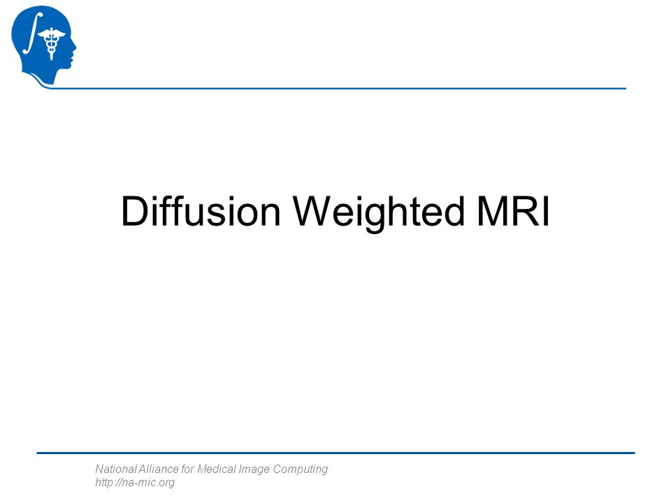 National Alliance for Medical Image Computing http://na-mic.org Diffusion Weighted MRI