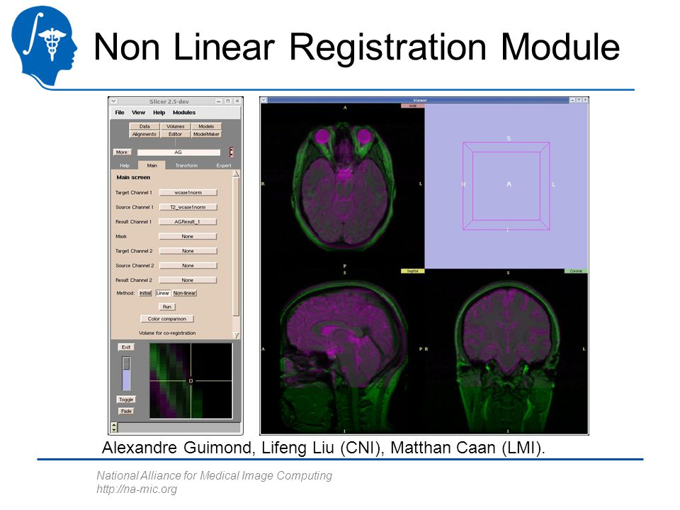 National Alliance for Medical Image Computing http://na-mic.org Non Linear Registration Module Alexandre Guimond, Lifeng Liu (CNI), Matthan Caan (LMI).