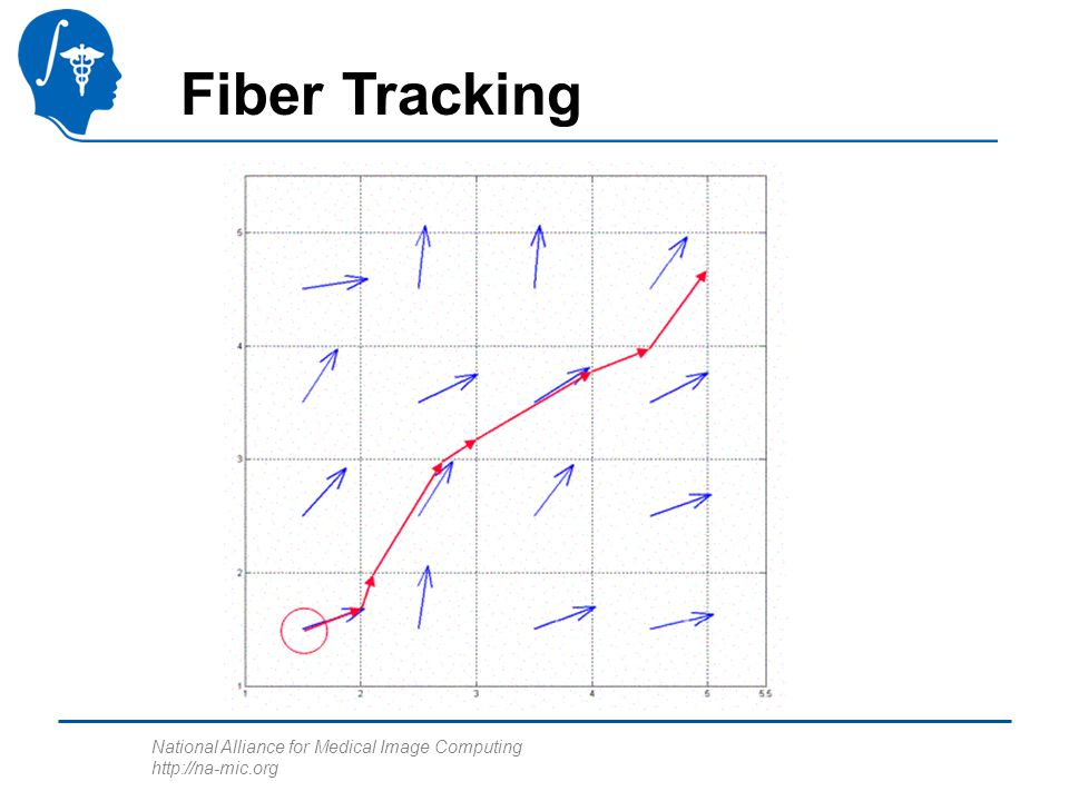 National Alliance for Medical Image Computing http://na-mic.org Fiber Tracking