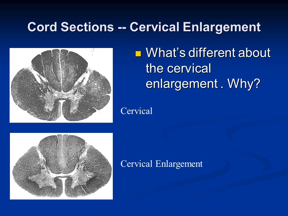 Cord Sections -- Cervical Enlargement Cervical Cervical Enlargement What's different about the cervical enlargement.