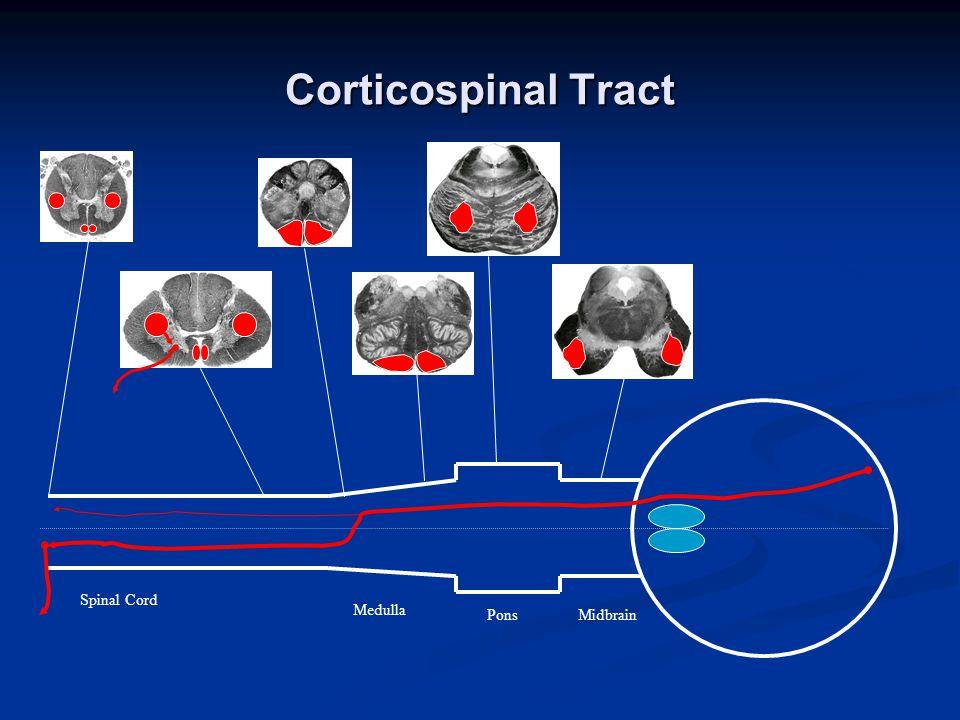 Corticospinal Tract Spinal Cord Medulla PonsMidbrain