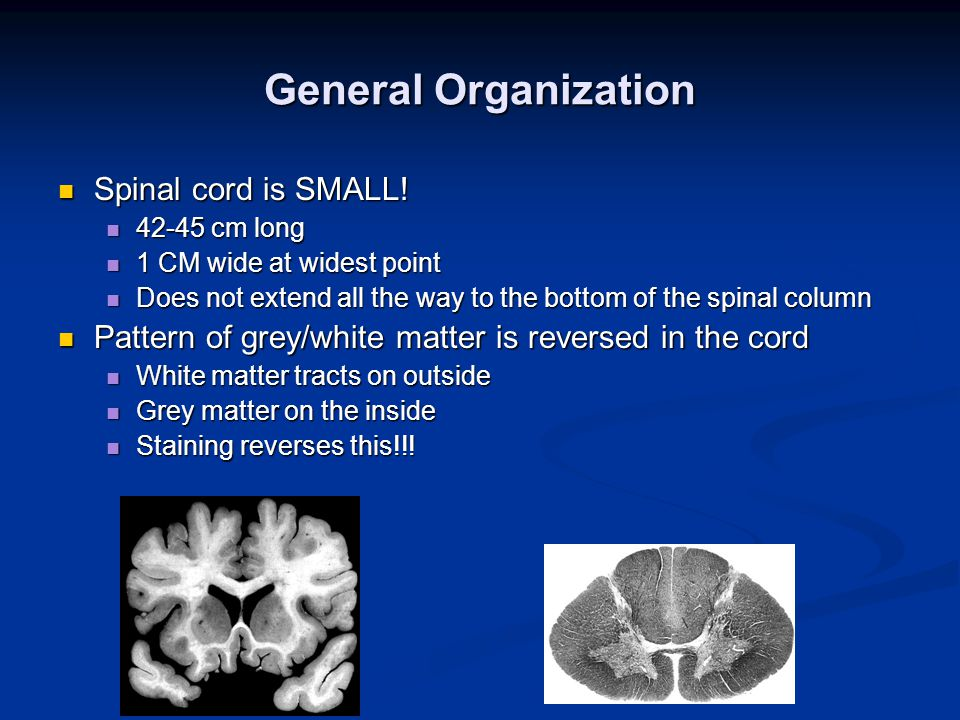 General Organization Spinal cord is SMALL. Spinal cord is SMALL.
