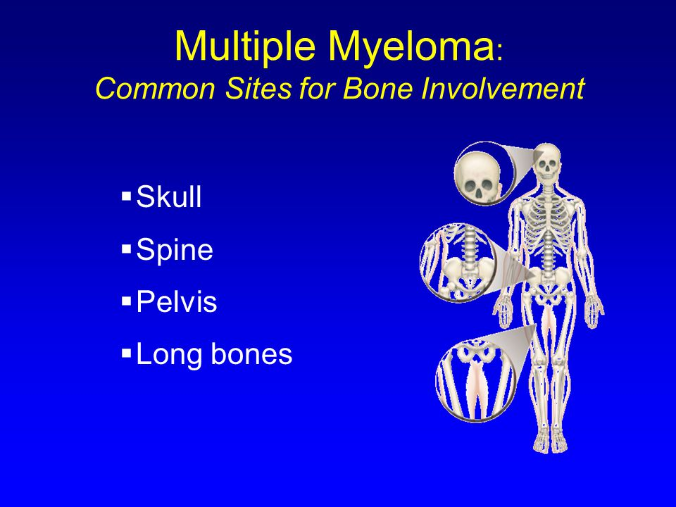 Multiple Myeloma : Common Sites for Bone Involvement  Skull  Spine  Pelvis  Long bones
