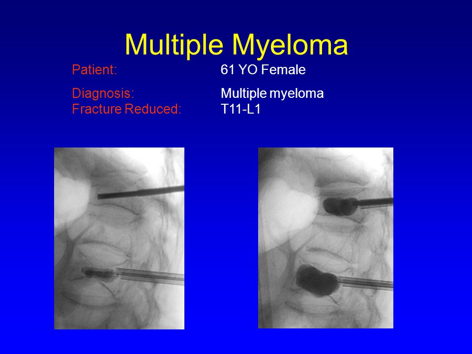 Multiple Myeloma Patient: 61 YO Female Diagnosis: Multiple myeloma Fracture Reduced: T11-L1