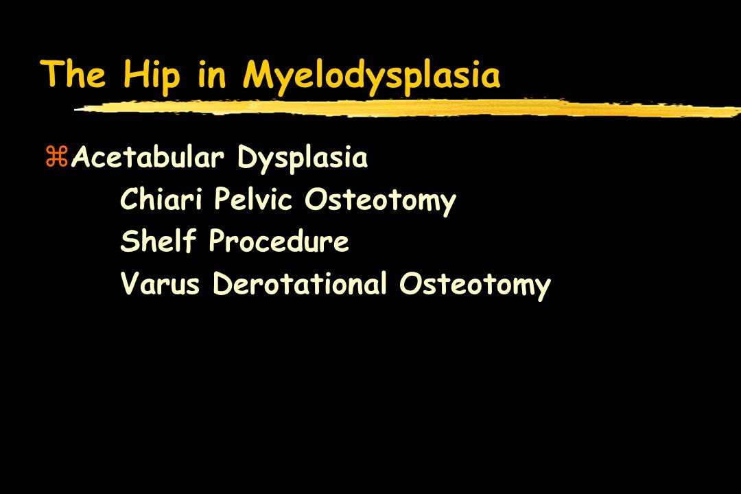 The Hip in Myelodysplasia zAcetabular Dysplasia Chiari Pelvic Osteotomy Shelf Procedure Varus Derotational Osteotomy